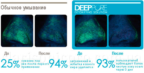Результаты использования Clarisonic Deep-Pore-Detoxifuing-Replenishment-Set